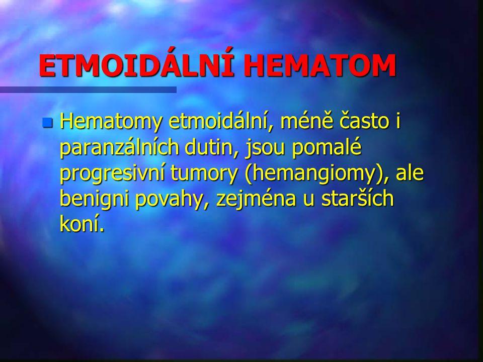 ETMOIDÁLNÍ HEMATOM