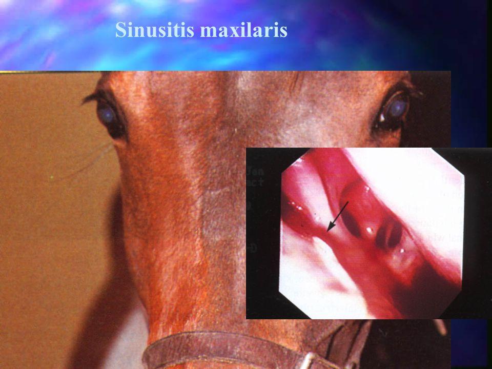 Sinusitis maxilaris