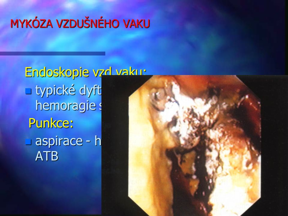 typické dyfterické membrány a hemoragie sliznice, hnis Punkce: