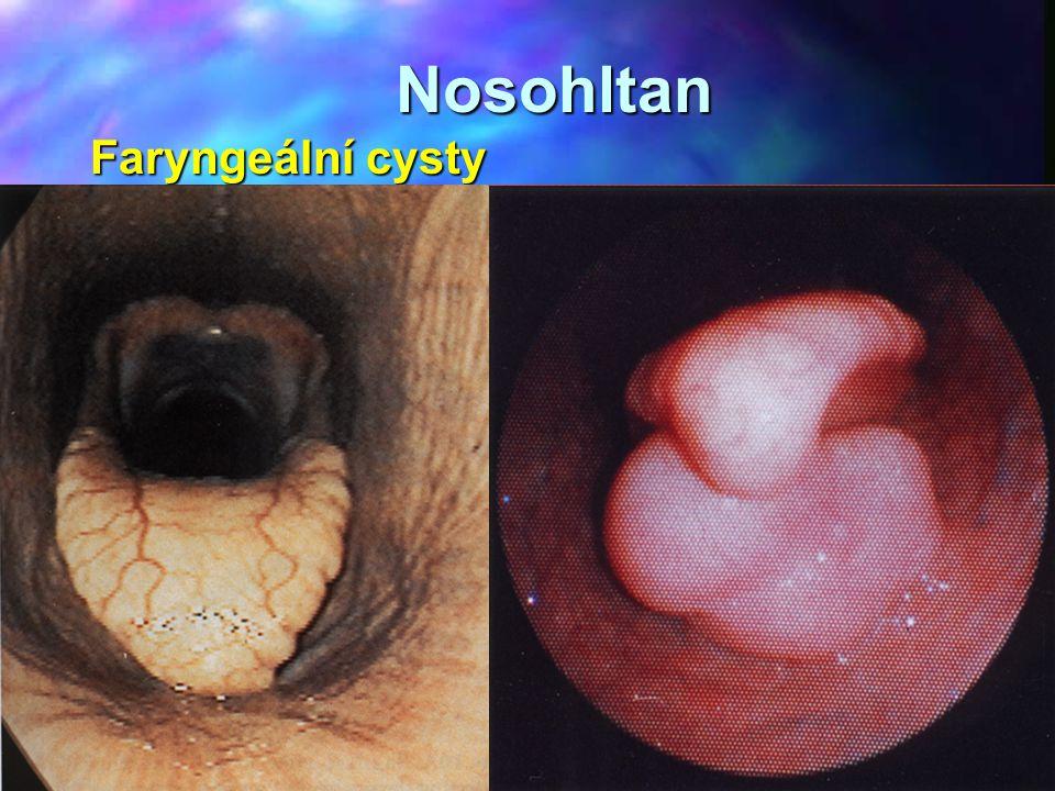 Nosohltan Faryngeální cysty