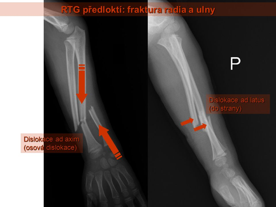 RTG předloktí: fraktura radia a ulny