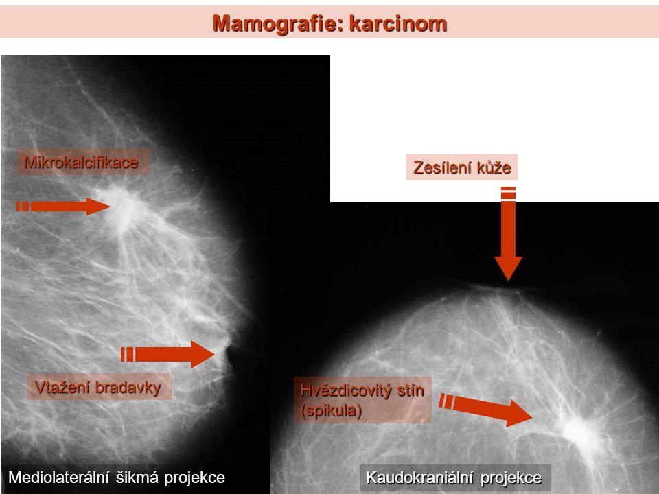 Mamografie: karcinom Mikrokalcifikace Zesílení kůže Vtažení bradavky
