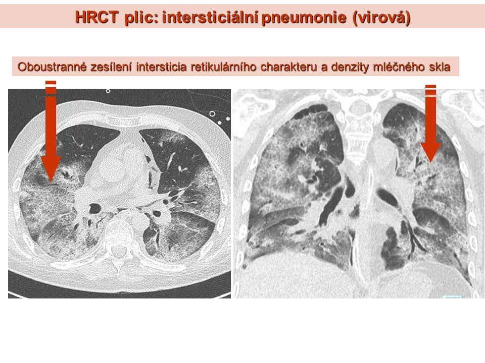 HRCT plic: intersticiální pneumonie (virová)