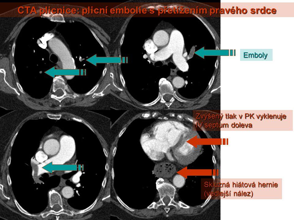 CTA plicnice: plicní embolie s přetížením pravého srdce
