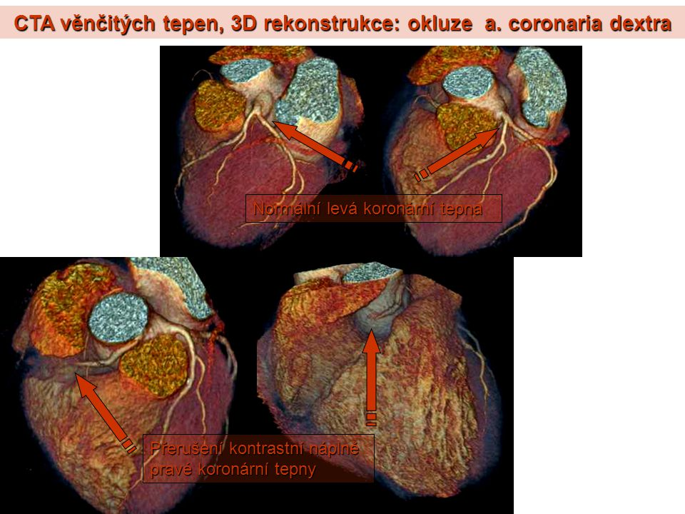 CTA věnčitých tepen, 3D rekonstrukce: okluze a. coronaria dextra