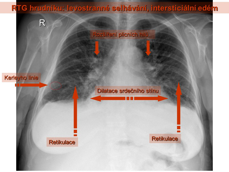 RTG hrudníku: levostranné selhávání, intersticiální edém