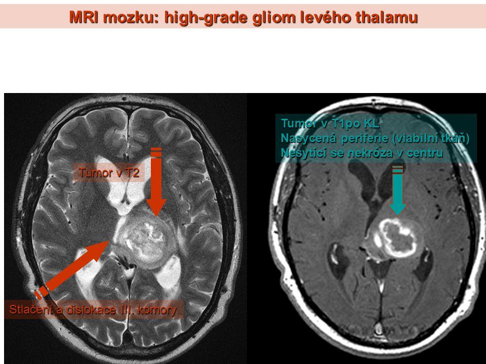 MRI mozku: high-grade gliom levého thalamu