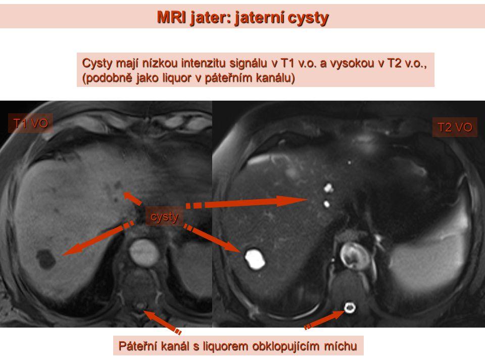 MRI jater: jaterní cysty