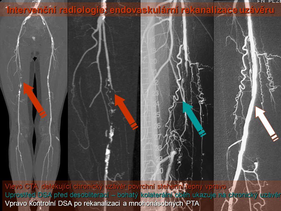 Intervenční radiologie: endovaskulární rekanalizace uzávěru