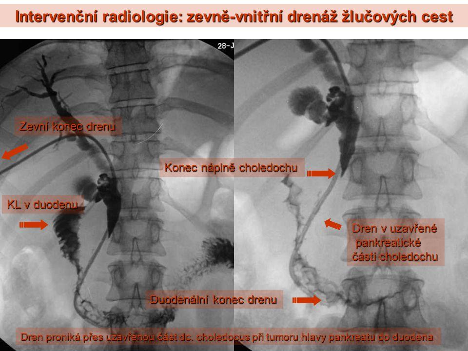 Intervenční radiologie: zevně-vnitřní drenáž žlučových cest