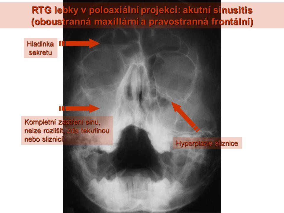 RTG lebky v poloaxiální projekci: akutní sinusitis (oboustranná maxillární a pravostranná frontální)