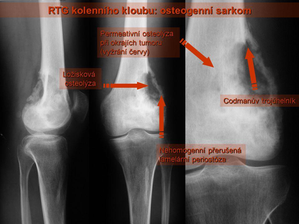 RTG kolenního kloubu: osteogenní sarkom