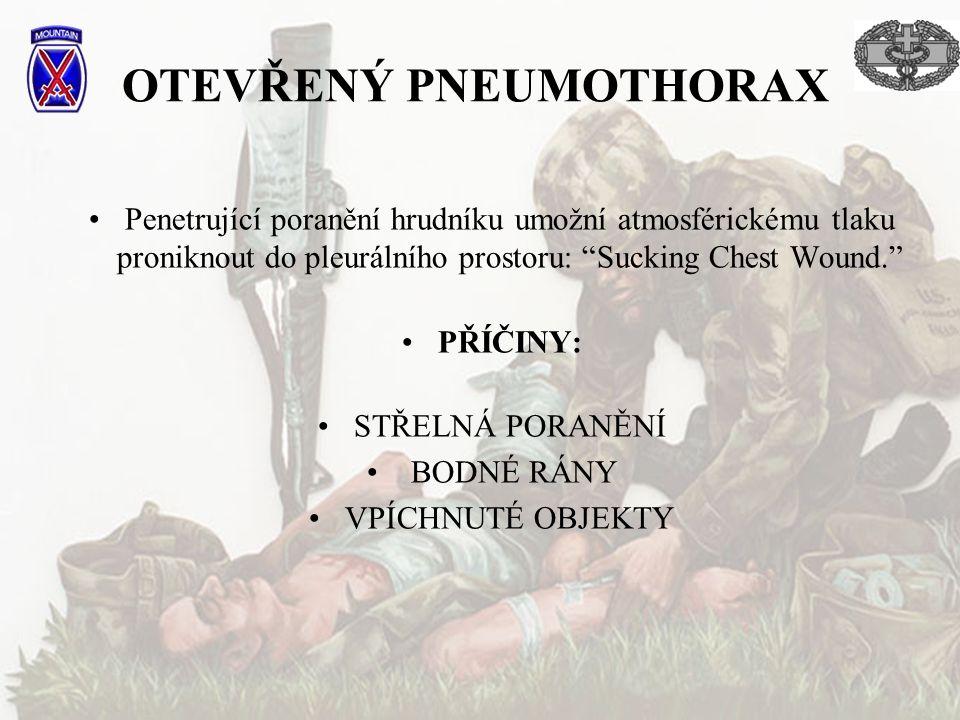 OTEVŘENÝ PNEUMOTHORAX