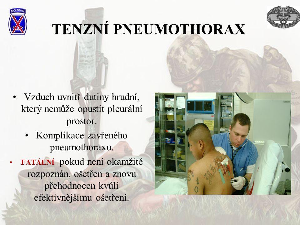 TENZNÍ PNEUMOTHORAX Vzduch uvnitř dutiny hrudní, který nemůže opustit pleurální prostor. Komplikace zavřeného pneumothoraxu.