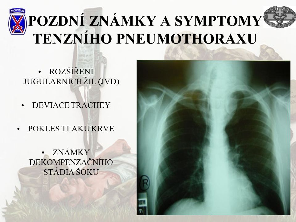 POZDNÍ ZNÁMKY A SYMPTOMY TENZNÍHO PNEUMOTHORAXU