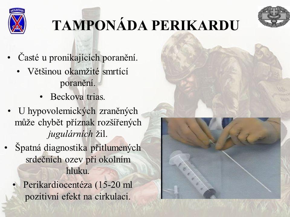 TAMPONÁDA PERIKARDU Časté u pronikajících poranění.