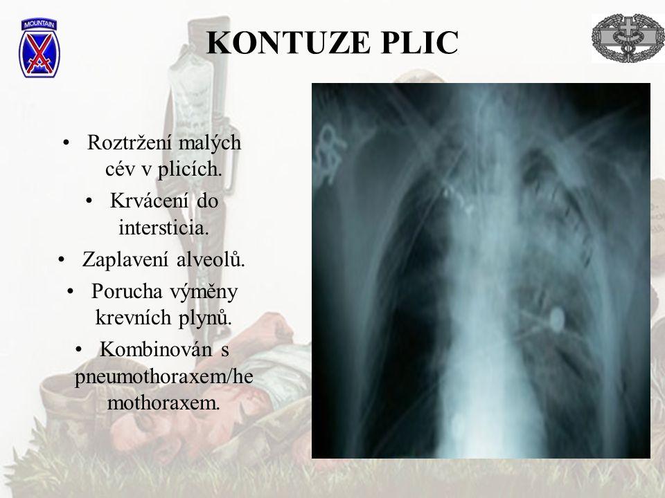 KONTUZE PLIC Roztržení malých cév v plicích. Krvácení do intersticia.