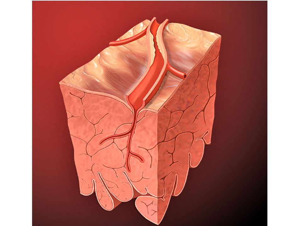 autor: Patrick J. Lynch http://www.wikiskripta.eu/index.php/Soubor:Heart_coronary_artery_lesion.jpg