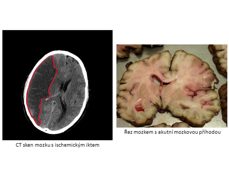 Řez mozkem s akutní mozkovou příhodou