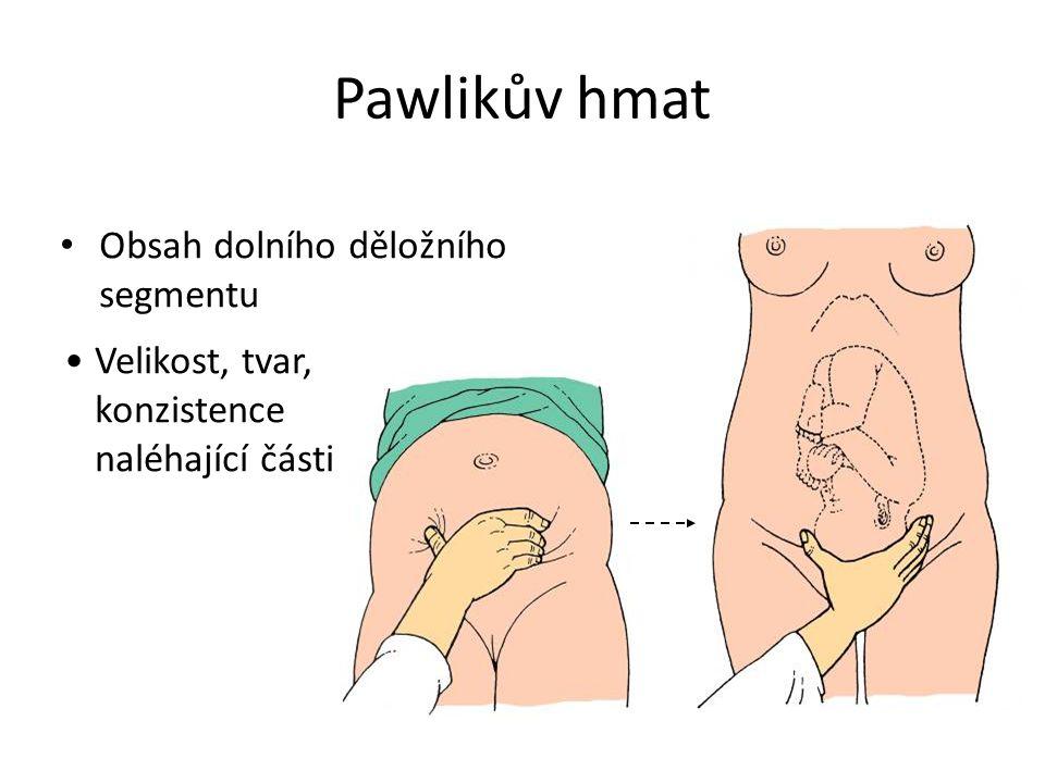 Pawlikův hmat Obsah dolního děložního segmentu