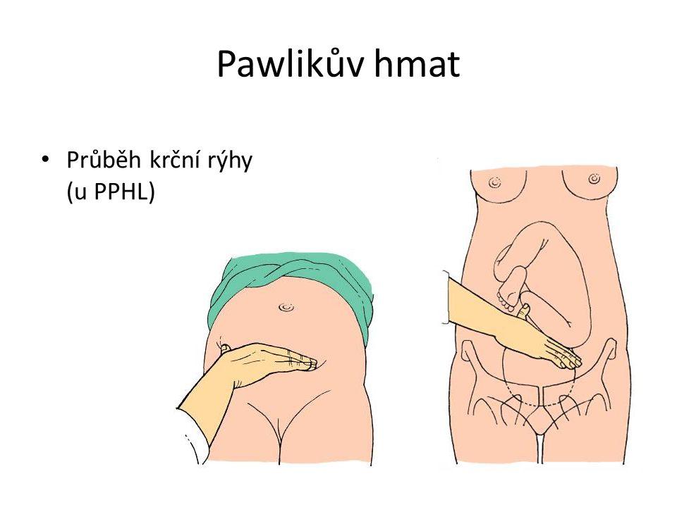 Pawlikův hmat Průběh krční rýhy (u PPHL)