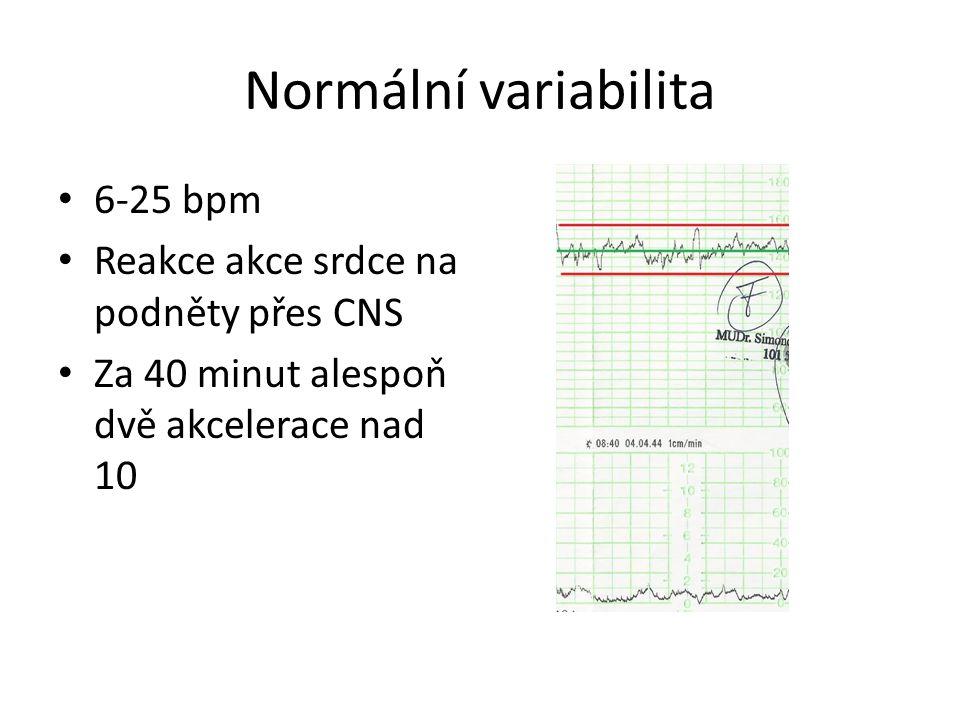 Normální variabilita 6-25 bpm Reakce akce srdce na podněty přes CNS
