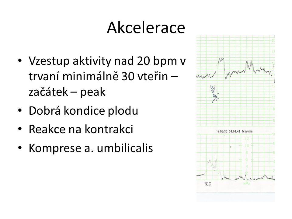 Akcelerace Vzestup aktivity nad 20 bpm v trvaní minimálně 30 vteřin – začátek – peak. Dobrá kondice plodu.