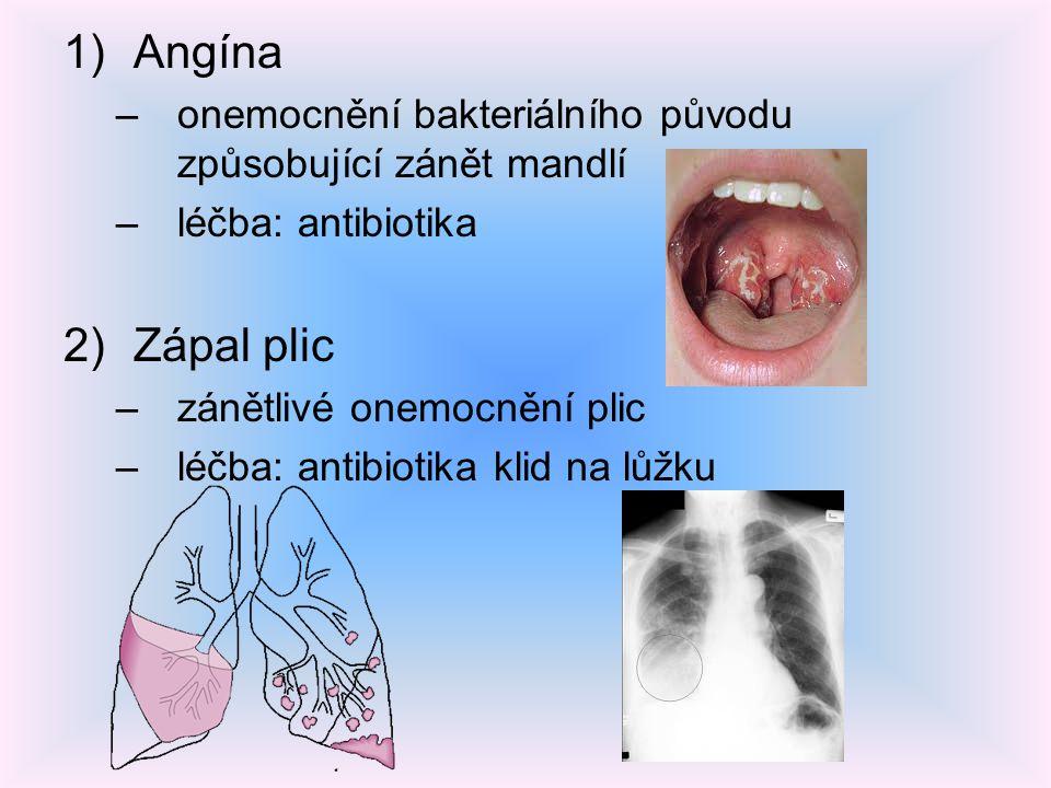 Angína onemocnění bakteriálního původu způsobující zánět mandlí. léčba: antibiotika. Zápal plic. zánětlivé onemocnění plic.