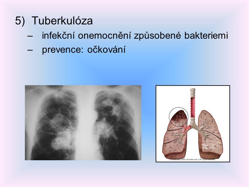 Tuberkulóza infekční onemocnění způsobené bakteriemi