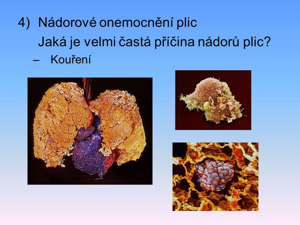 Nádorové onemocnění plic Jaká je velmi častá příčina nádorů plic
