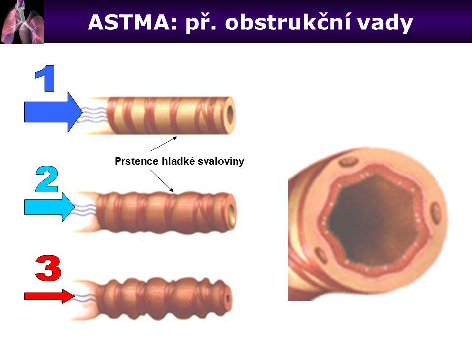 ASTMA: př. obstrukční vady