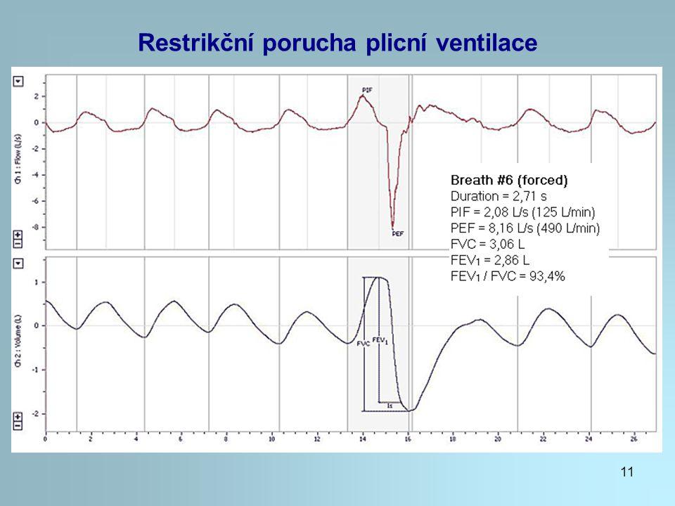 Restrikční porucha plicní ventilace
