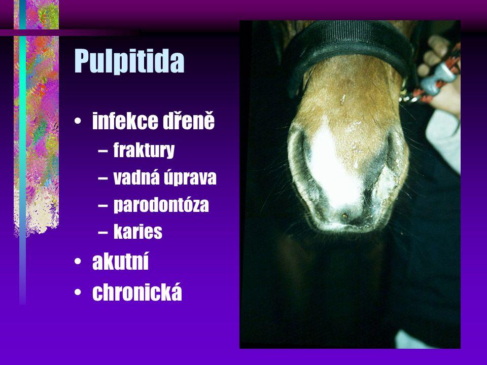Pulpitida infekce dřeně akutní chronická fraktury vadná úprava