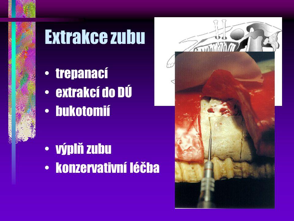 Extrakce zubu trepanací extrakcí do DÚ bukotomií výplň zubu