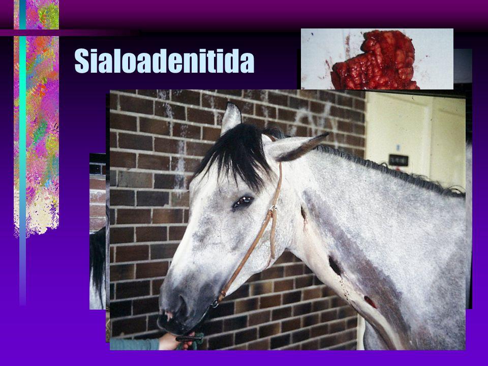 Sialoadenitida