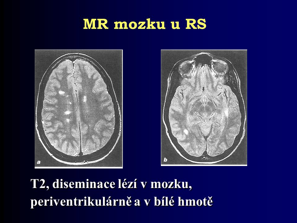 T2, diseminace lézí v mozku, periventrikulárně a v bílé hmotě