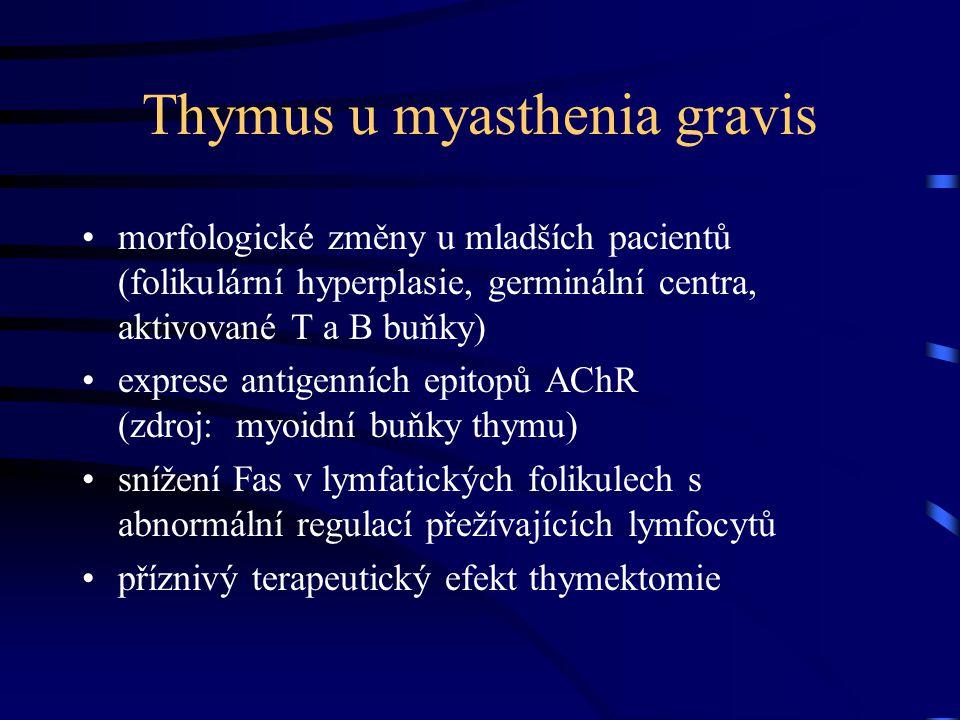 Thymus u myasthenia gravis