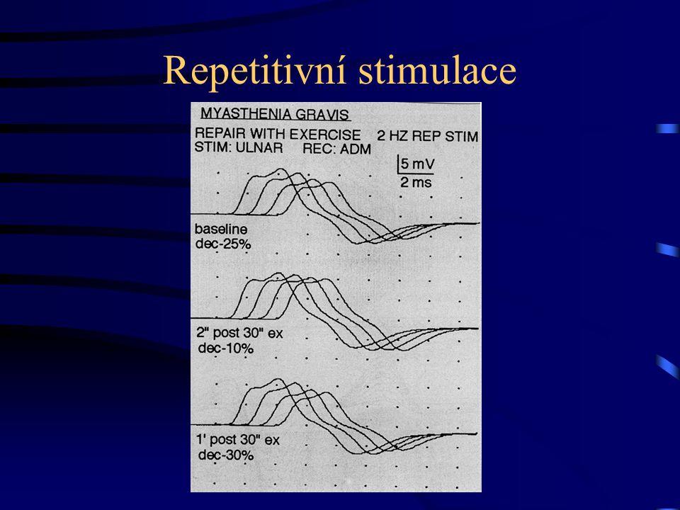 Repetitivní stimulace