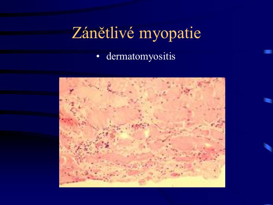 Zánětlivé myopatie dermatomyositis
