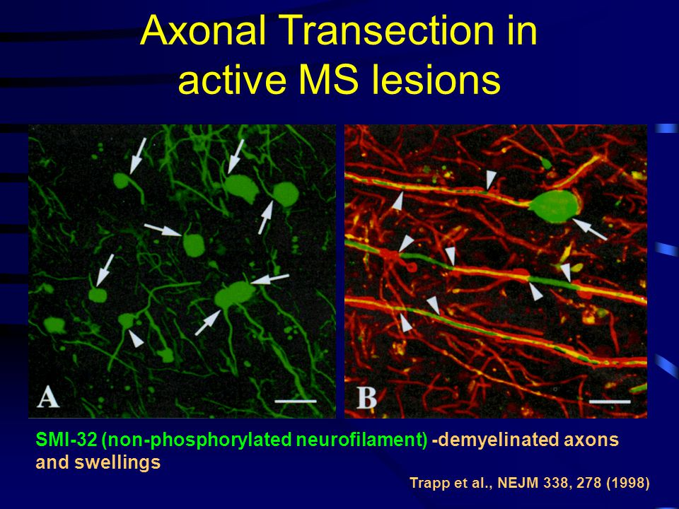 Axonal Transection in active MS lesions