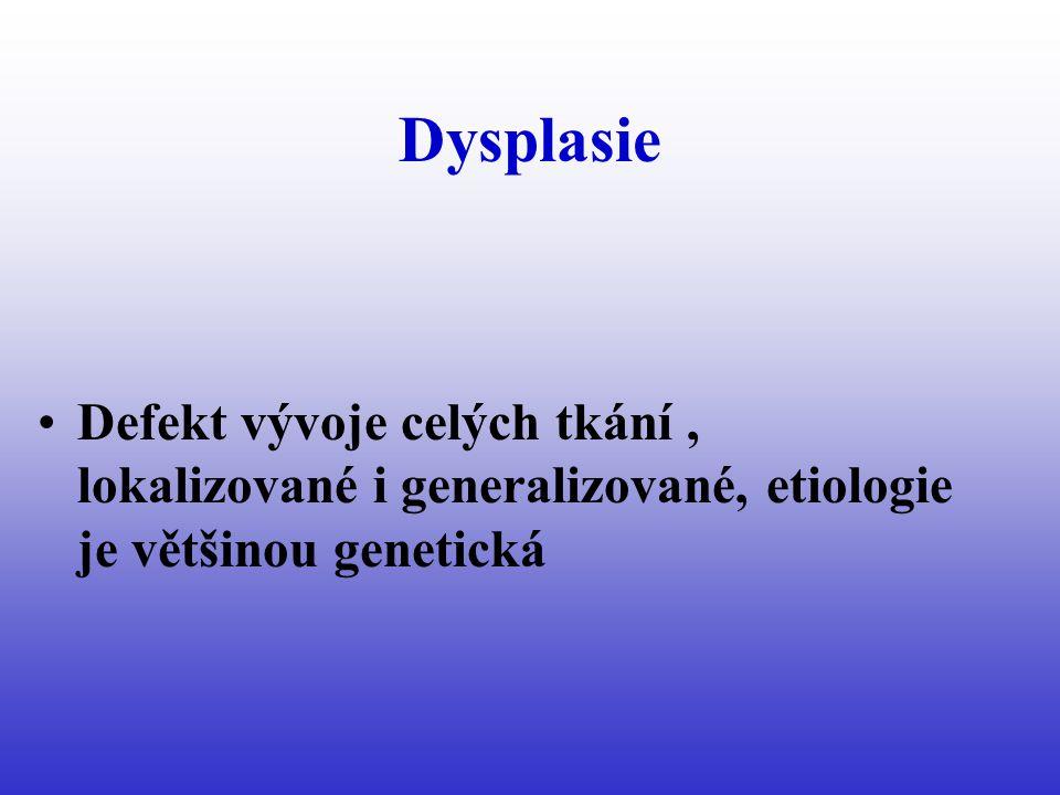 Dysplasie Defekt vývoje celých tkání , lokalizované i generalizované, etiologie je většinou genetická.