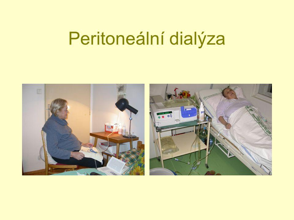 Peritoneální dialýza