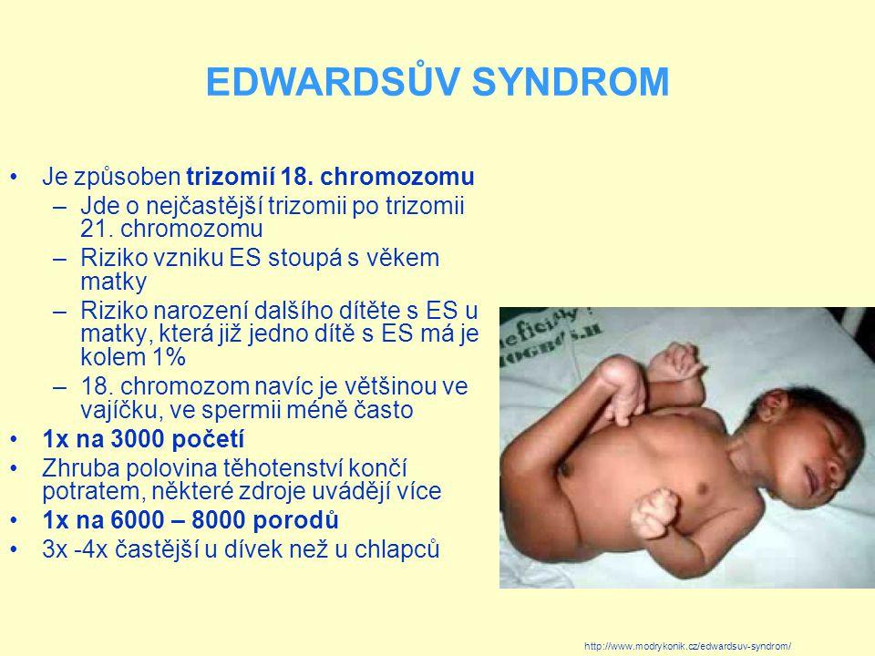 EDWARDSŮV SYNDROM Je způsoben trizomií 18. chromozomu