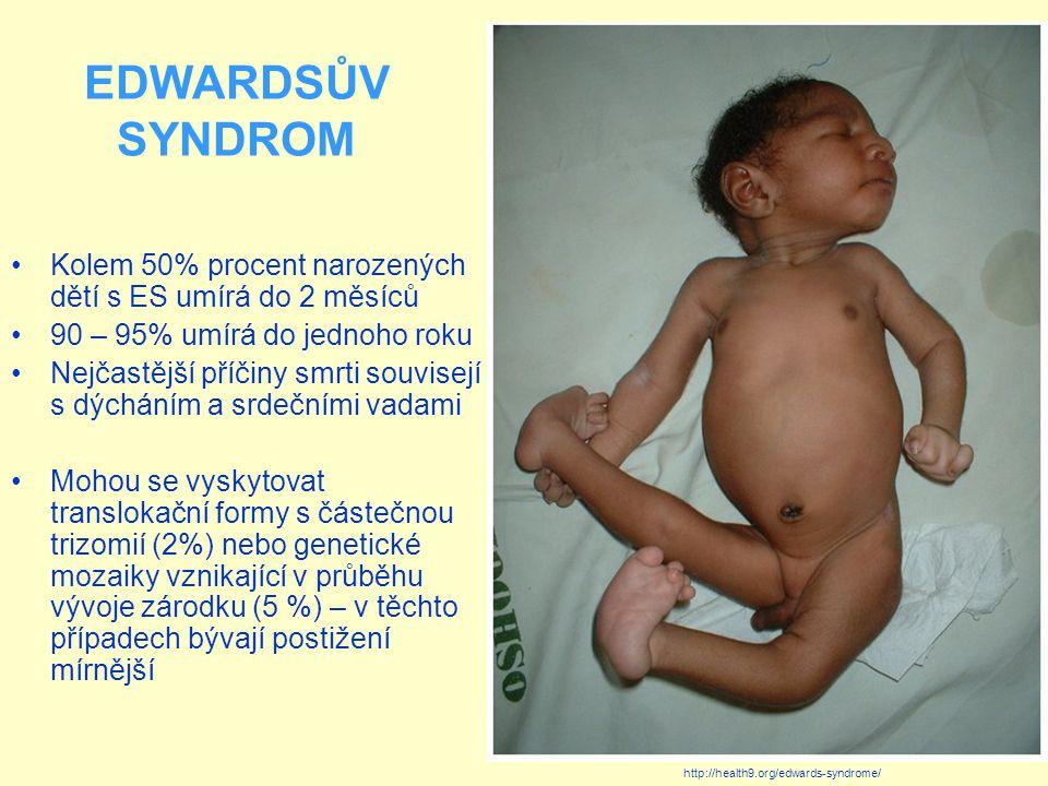 EDWARDSŮV SYNDROM Kolem 50% procent narozených dětí s ES umírá do 2 měsíců. 90 – 95% umírá do jednoho roku.