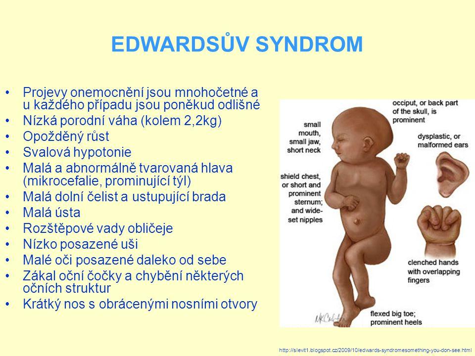 EDWARDSŮV SYNDROM Projevy onemocnění jsou mnohočetné a u každého případu jsou poněkud odlišné. Nízká porodní váha (kolem 2,2kg)