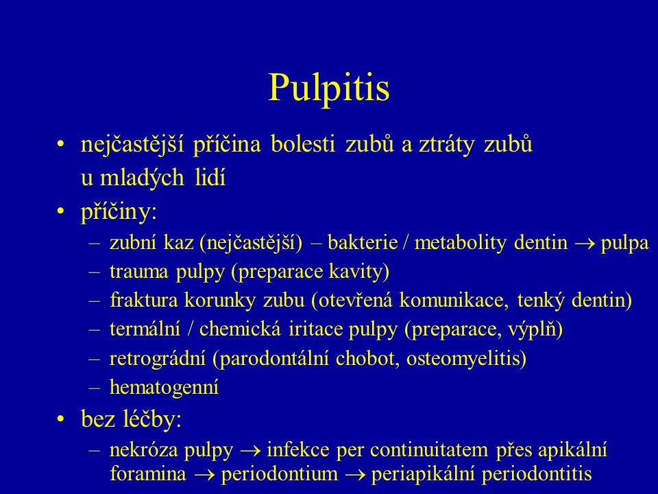 Pulpitis nejčastější příčina bolesti zubů a ztráty zubů u mladých lidí