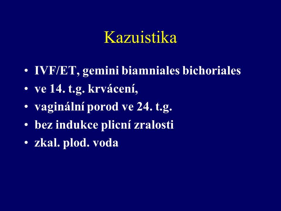 Kazuistika IVF/ET, gemini biamniales bichoriales ve 14. t.g. krvácení,