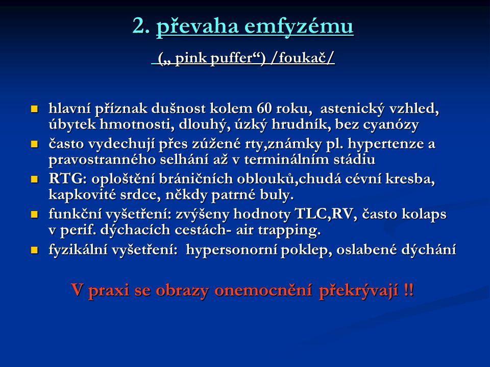 """2. převaha emfyzému ("""" pink puffer ) /foukač/"""