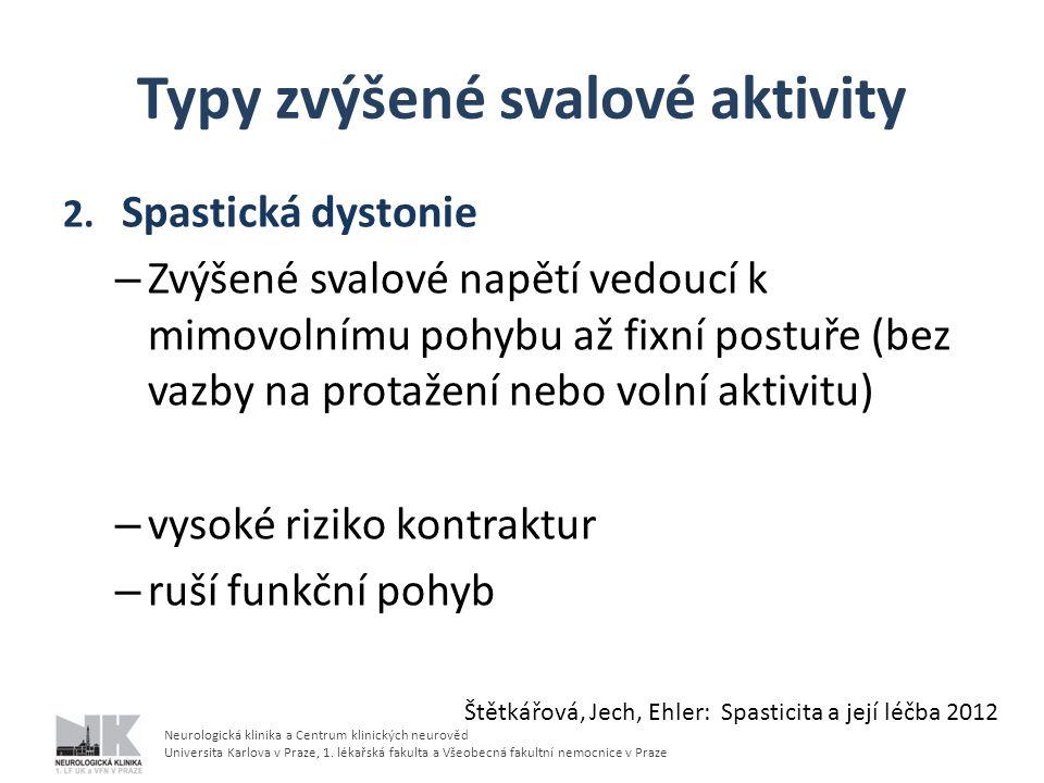 Typy zvýšené svalové aktivity