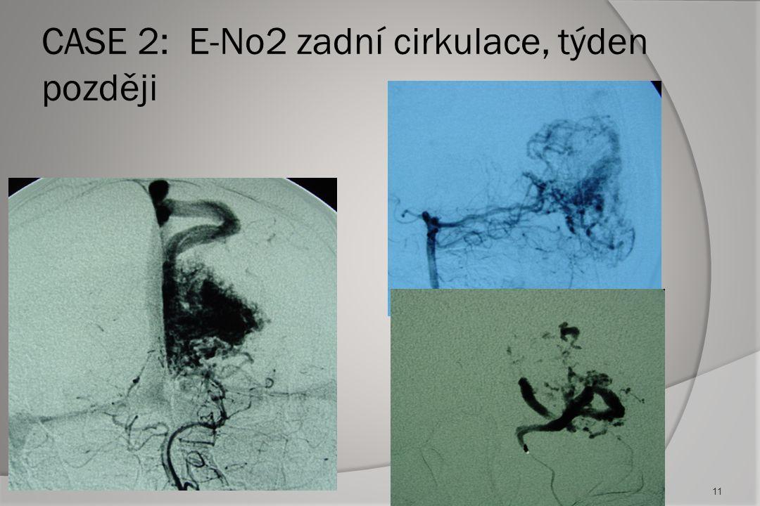 CASE 2: E-No2 zadní cirkulace, týden později